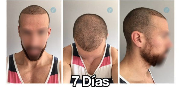 Corte de pelo 1 2 3