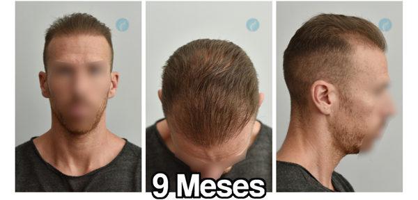 9 meses después de injerto capilar - crecimiento y evolución del pelo trasplantado