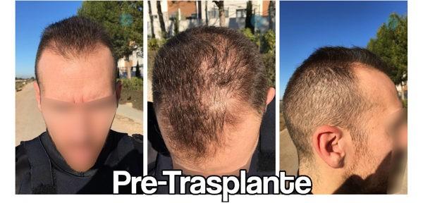 como crece el pelo trasplantado