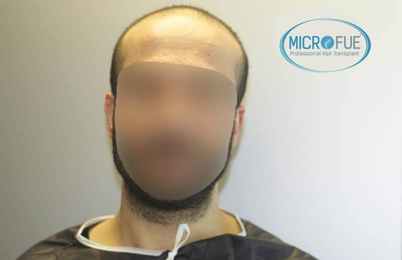 imágenes resultados trasplante capilar Turquía Microfue 01_1