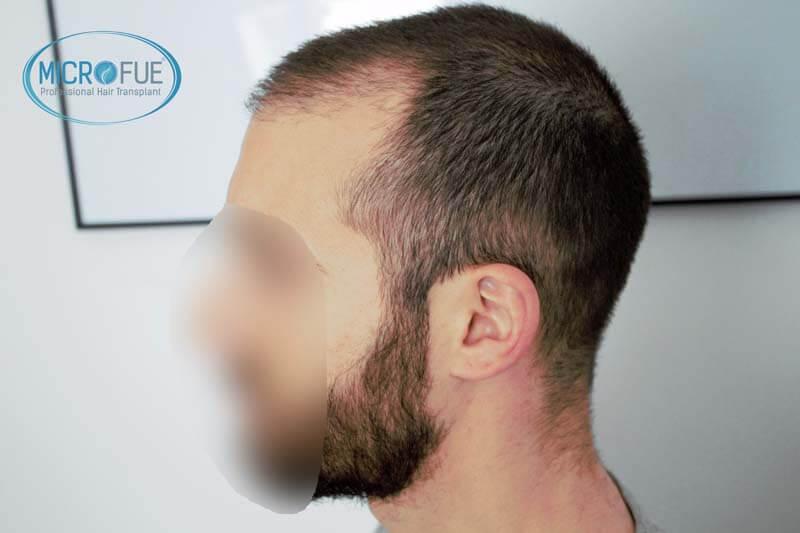 resultados_injerto_capilar_trasplante_Turquia_imagenes_fotos_7_04