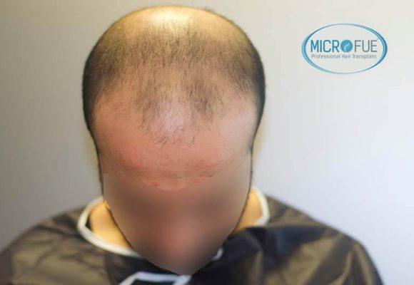 imágenes resultados trasplante capilar Turquía Microfue 01_2