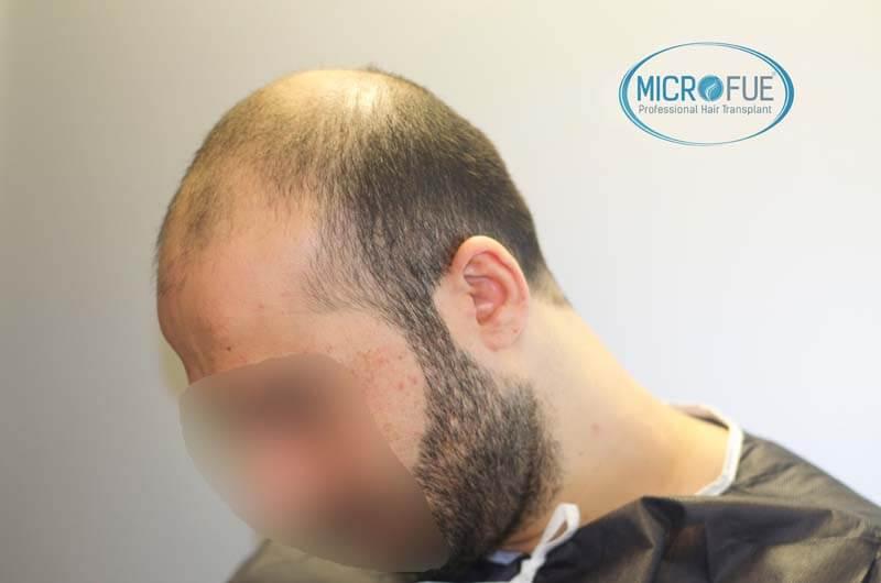 imágenes resultados trasplante capilar Turquía Microfue 01_3