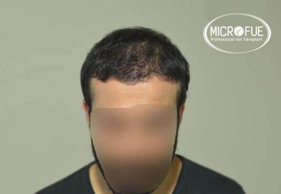 imágenes resultados trasplante capilar Turquía Microfue 01_5
