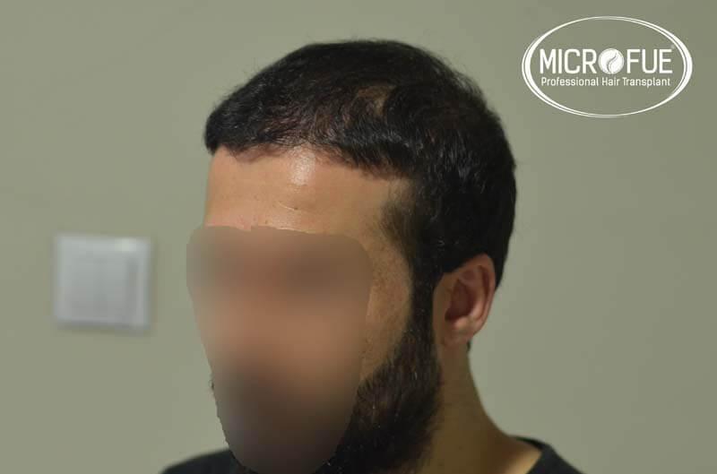 imágenes resultados trasplante capilar Turquía Microfue 01_7