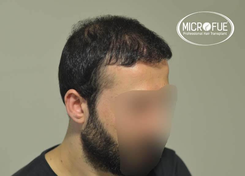 imágenes resultados trasplante capilar Turquía Microfue 01_6
