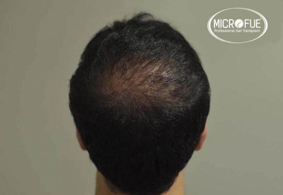 imágenes resultados trasplante capilar Turquía Microfue 01_8