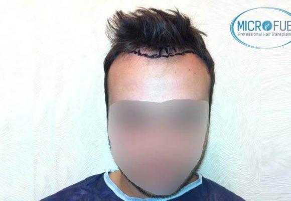 resultados_fotos_injerto_trasplante_capilar_turquia_microfue_5_02