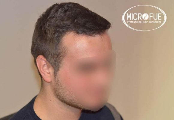 resultados_fotos_injerto_trasplante_capilar_turquia_microfue_5_04