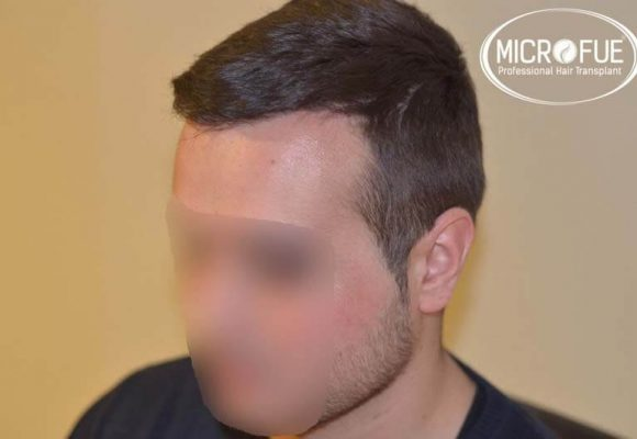 resultados_fotos_injerto_trasplante_capilar_turquia_microfue_5_05
