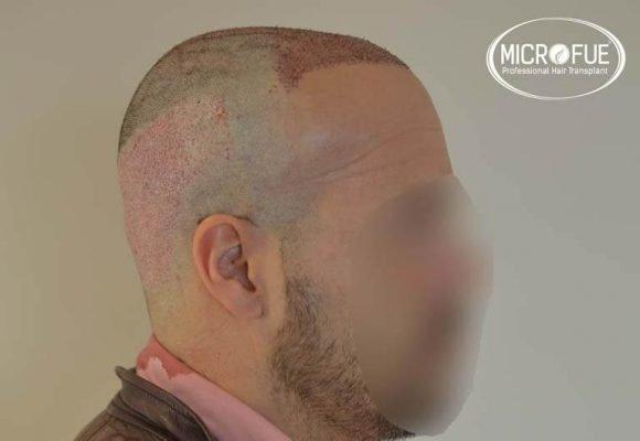 resultados trasplante capilar en Turquía 07
