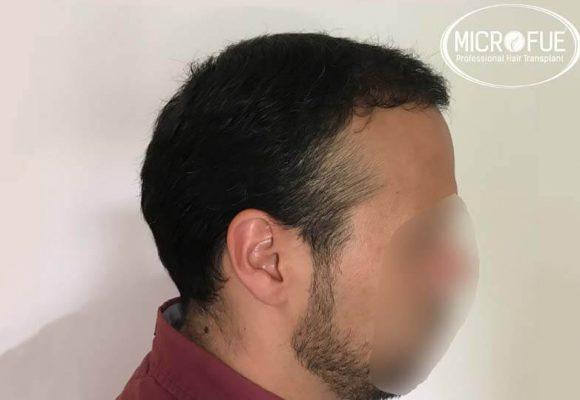 resultados trasplante capilar en Turquía 10