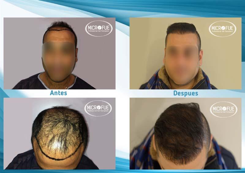 resultados_injerto_capilar_trasplante_Turquia_imagenes_fotos_9_01