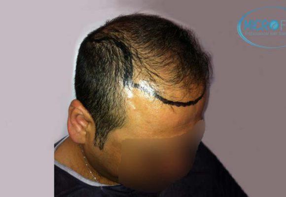 resultados_injerto_capilar_trasplante_Turquia_imagenes_fotos_9_02