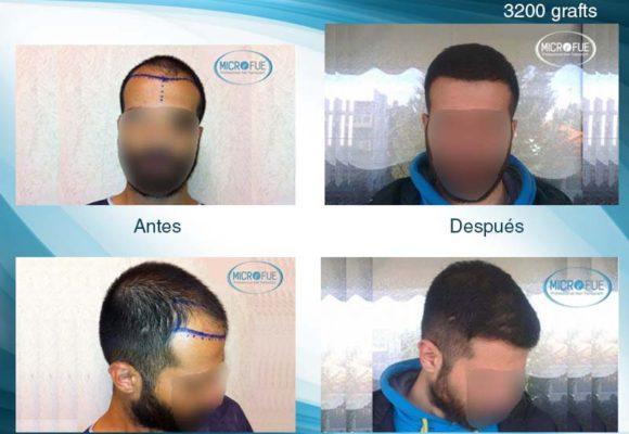 resultados_injerto_capilar_Turquia_Microfue_fotos_2_00