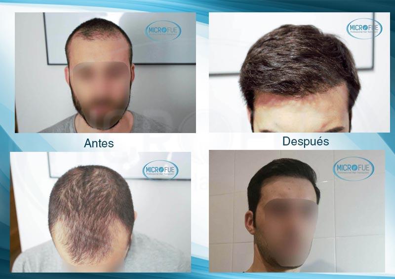 resultados_injerto_capilar_trasplante_Turquia_imagenes_fotos_7_00