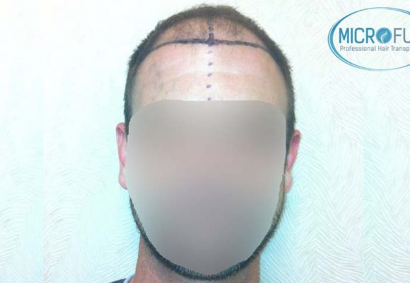 resultados_injerto_capilar_trasplante_Turquia_imagenes_fotos_11_01