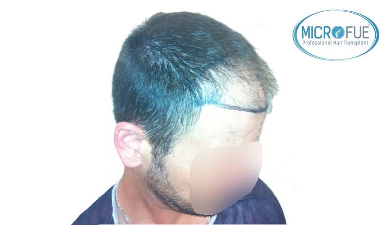 resultados_injerto_capilar_trasplante_Turquia_imagenes_fotos_11_03