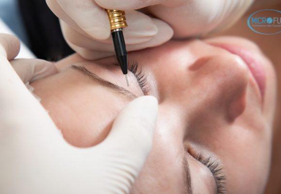 Micropigmentación, una nueva técnica de tratamiento capilar