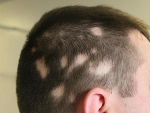 alopecia_areata_tratamiento_trasplante_capilar