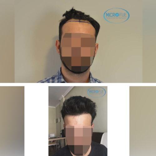 Resultados trasplante capilar en Turquía