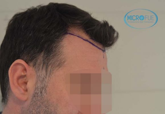 Antes y después de trasplante capilar en Turquía - Microfue