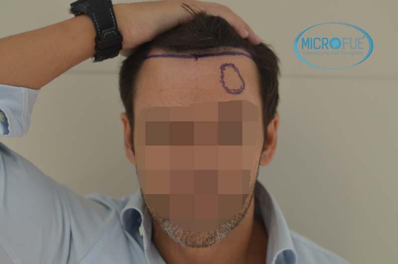 antes y despues de implante de pelo solo en entradas