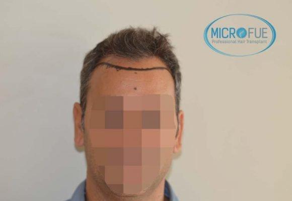 foto trasplante pelo microfue