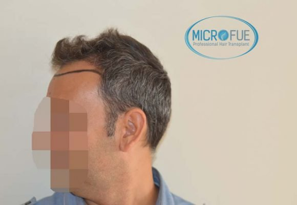 trasplante pelo microfue