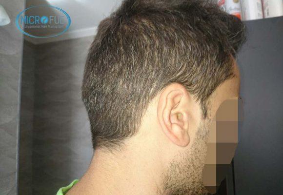 resultados_injerto_capilar_trasplante_Turquia_imagenes_fotos_24_13