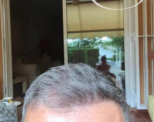 Trasplante capilar turquia