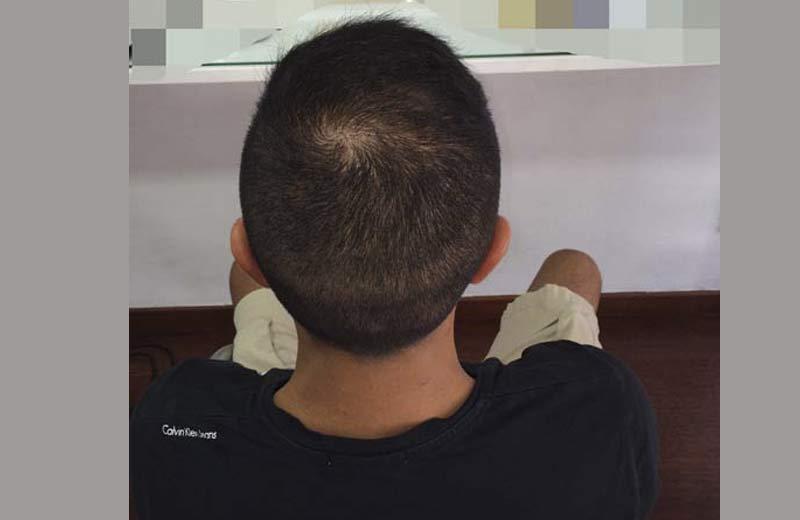 Antes y después de trasplante de pelo en turquia