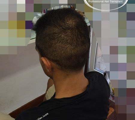 resultados_injerto_capilar_trasplante_Turquia_imagenes_fotos_18_11