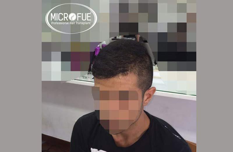 Fotos resultado trasplante capilar en Turquía 18