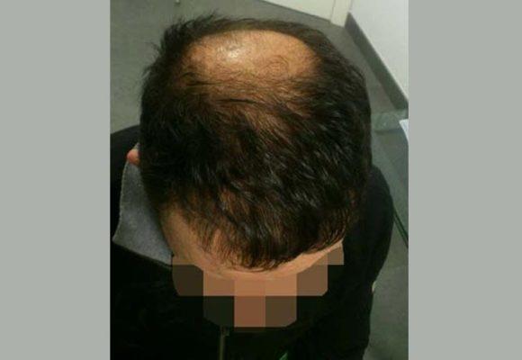 resultados_injerto_capilar_trasplante_Turquia_imagenes_fotos_15_02