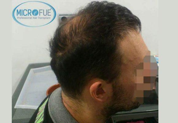 resultados_injerto_capilar_trasplante_Turquia_imagenes_fotos_15_01