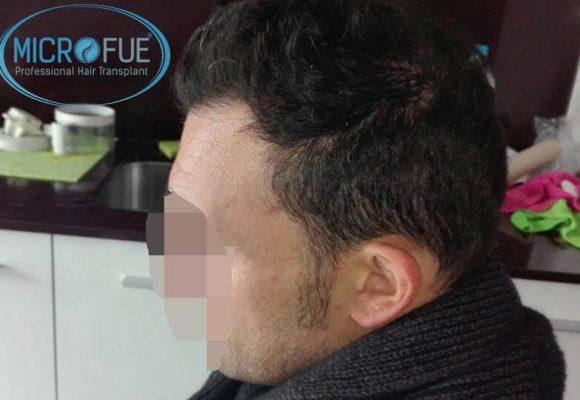 resultados_injerto_capilar_trasplante_Turquia_imagenes_fotos_15_06