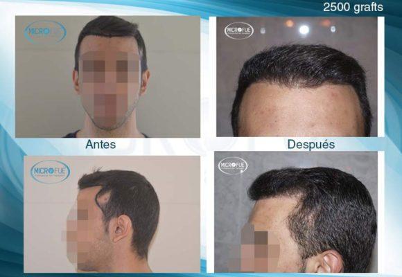 resultados_injerto_capilar_trasplante_Turquia_imagenes_fotos_22_00