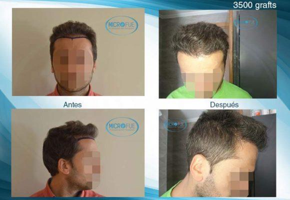 resultados_injerto_capilar_trasplante_Turquia_imagenes_fotos_24_00