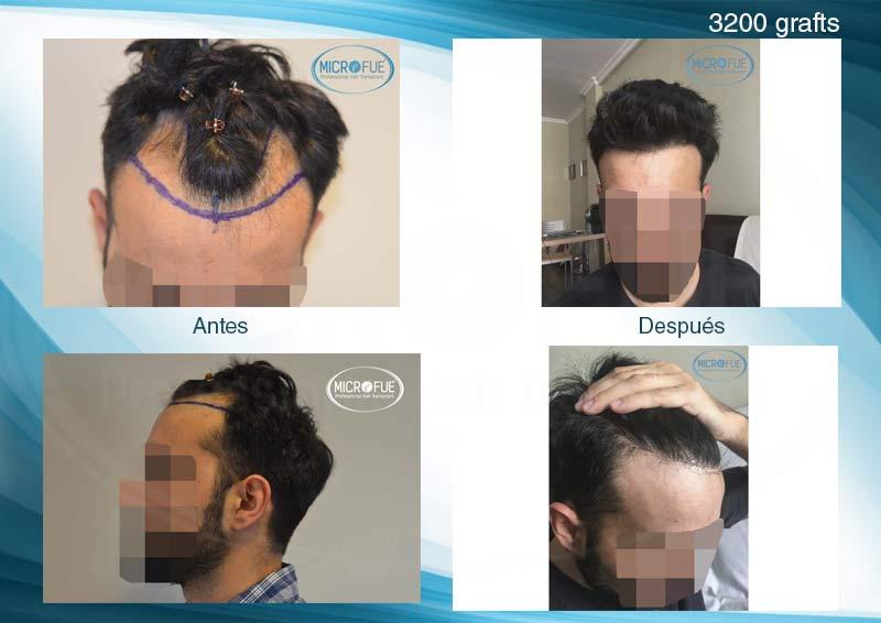 resultados_injerto_capilar_trasplante_Turquia_imagenes_fotos_26_00