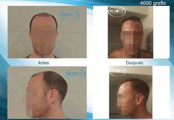 resultados_injerto_capilar_trasplante_Turquia_imagenes_fotos_27_00