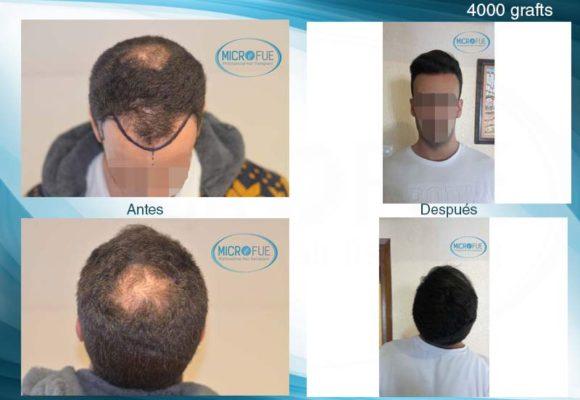 resultados_injerto_capilar_trasplante_Turquia_imagenes_fotos_28_00