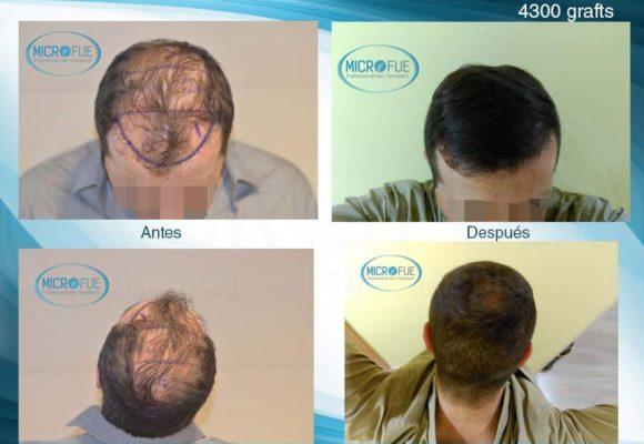 resultados_injerto_capilar_trasplante_Turquia_imagenes_fotos_29_00