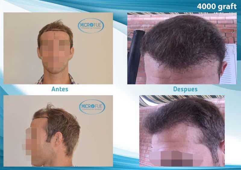 resultado trasplante de pelo
