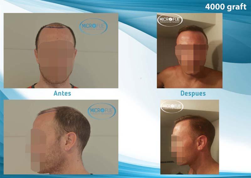 imágenes resultados implante pelo