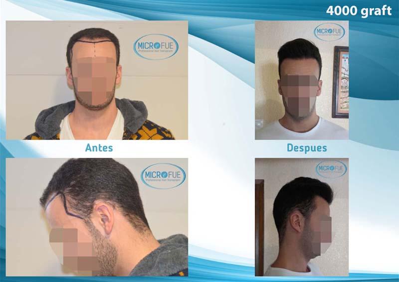 resultados trasplante Turquía