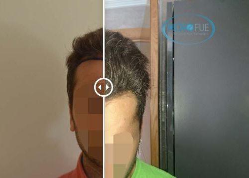 Fotos resultado trasplante capilar en Turquía 24