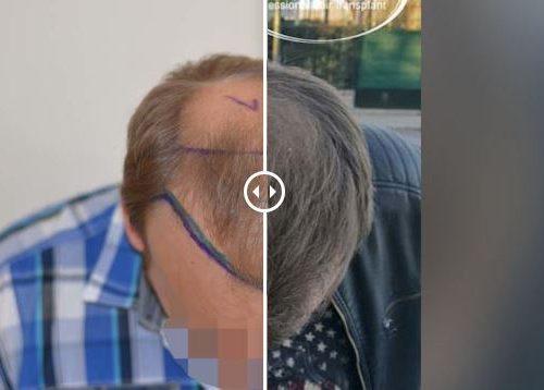 Fotos resultados trasplante capilar en Turquía 25