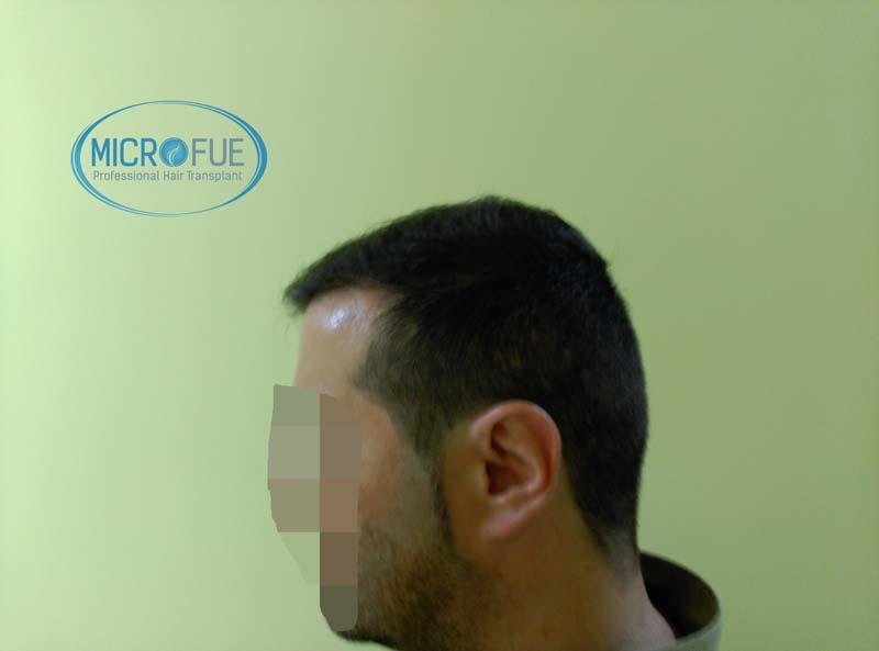 trasplante_capilar_turquia-5