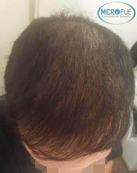 Fotos resultados trasplante de pelo en Turquía 12